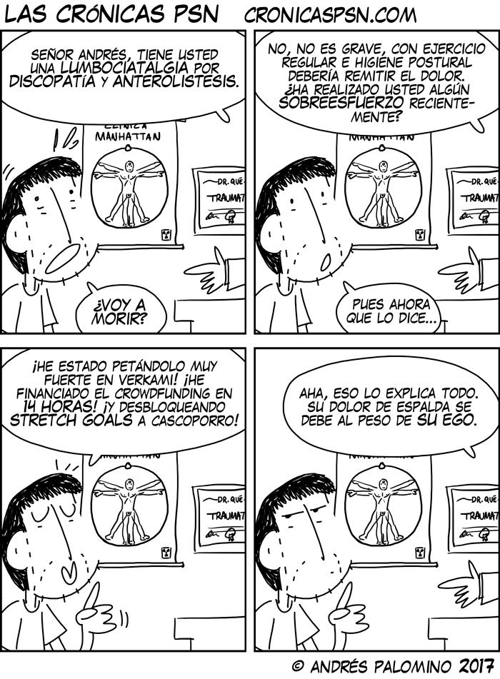 CPSN: DOLOR DE ESPALDA